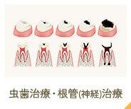 虫歯治療・根管(神経)治療