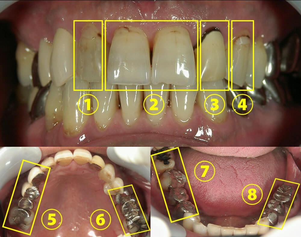 審美歯科治療例2