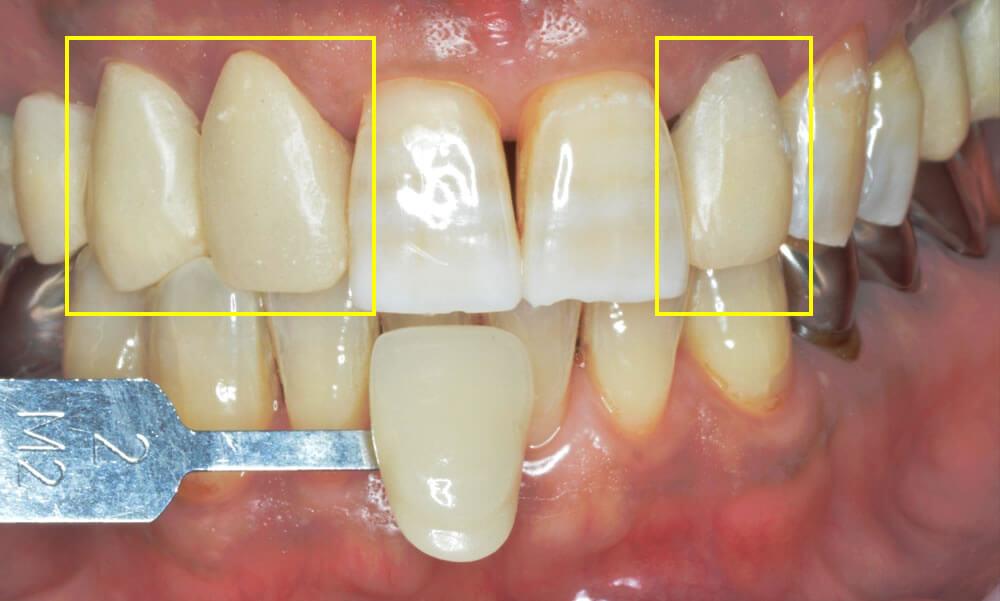 審美歯科治療例3