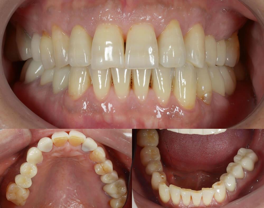 審美歯科治療例4