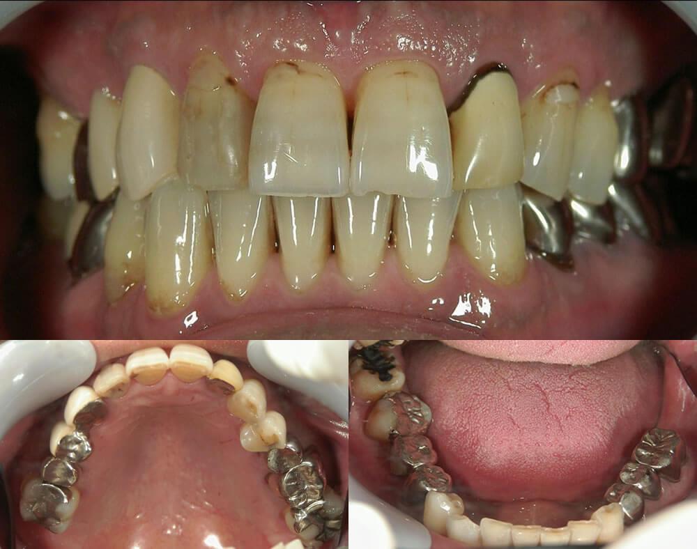 審美歯科治療例5