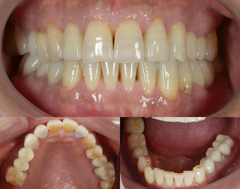 審美歯科治療例6