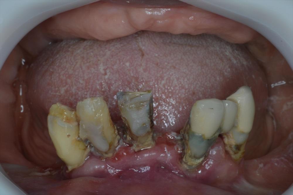 入れ歯治療前