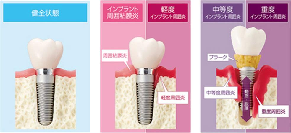 歯科インプラント周囲炎